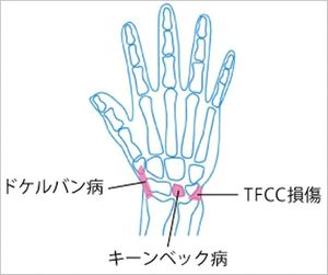 手首の痛み