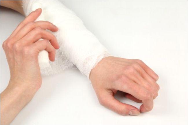 手首の骨 原因