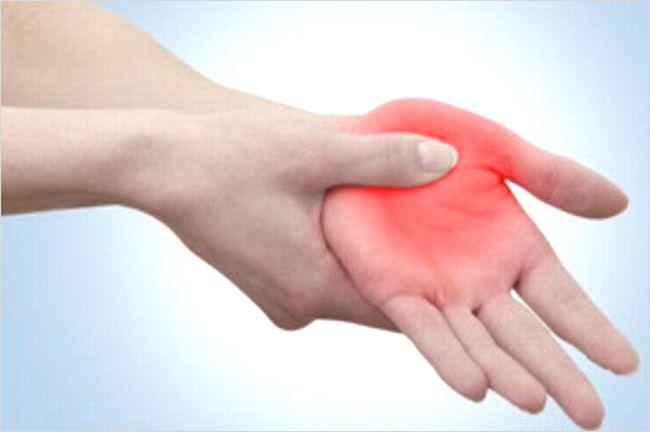 親指の腱鞘炎